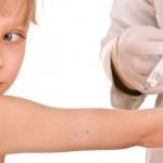 Cepljenje otroka